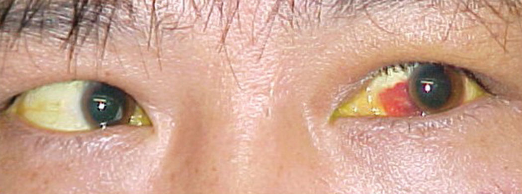 The patient's left eye demonstrated subconjunctival hemorrhage and he reported double vision.