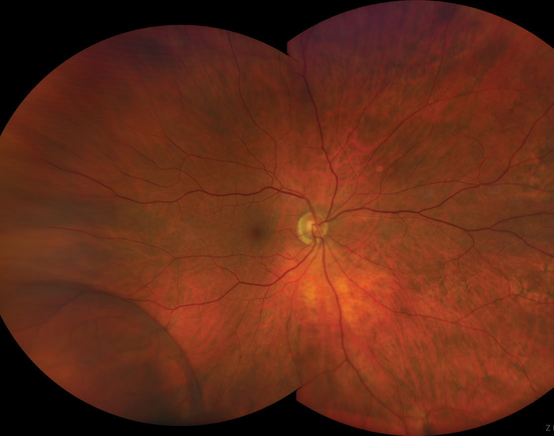 In most cases, a retinoschsis will neither impact vision nor carry any symptoms. However, on rare occasions, it can evolve into a retinal detachment.
