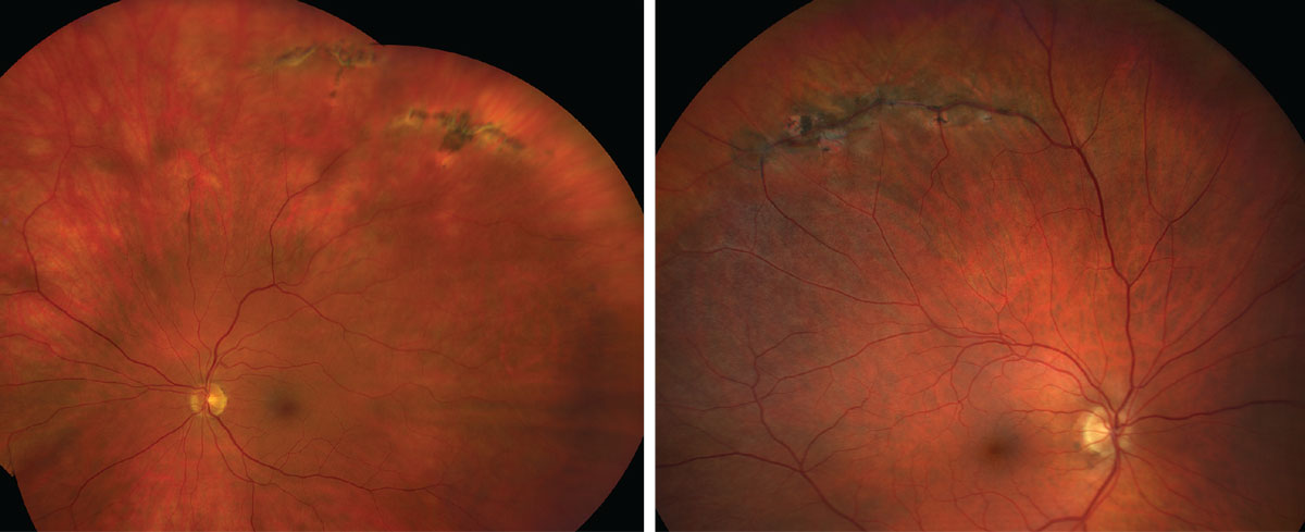 Lattice degeneration, as seen here, is associated with an increased risk of a retinal detachment.