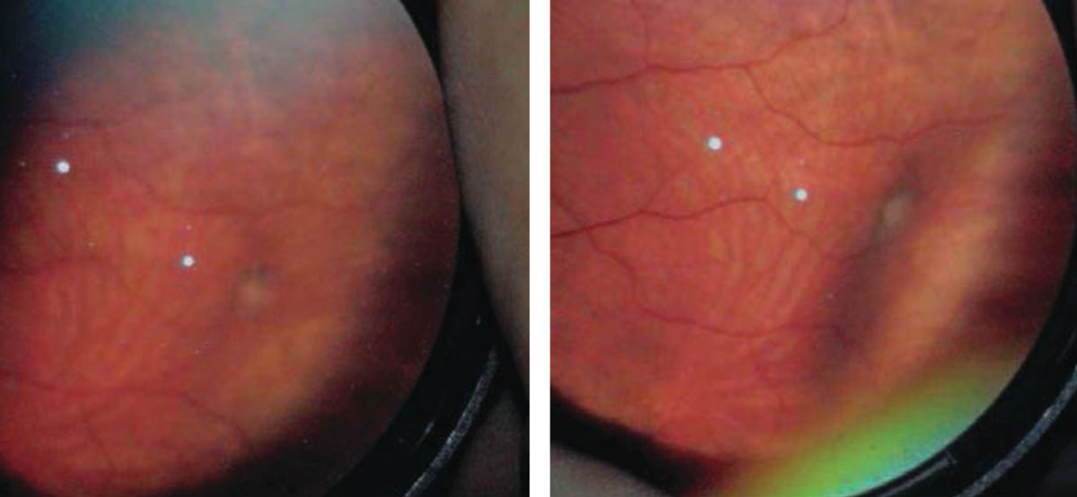 In this patient with a retinal traction tuft (left), applying scleral depression provided better detail of the lesion. Photos: Amy Dinardo, OD, MBA, and Philip Walling, OD.