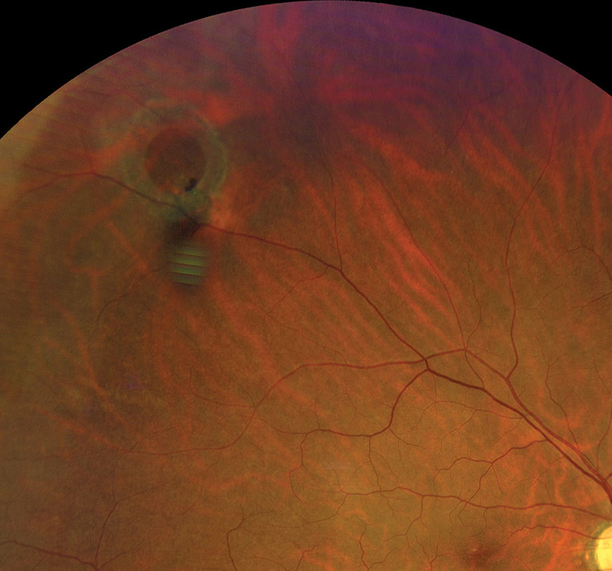 Refer operculated retinal hole patients with symptoms associated with RD to a retina specialist.