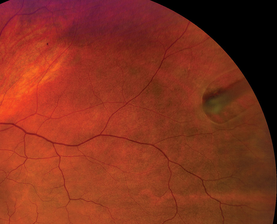 Refer any horseshoe retinal tear case emergently for prophylactic treatment.