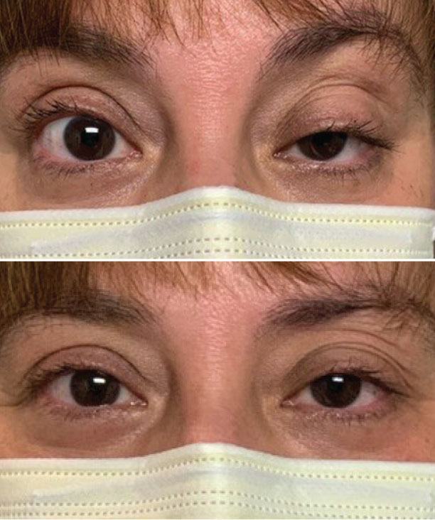 The ice pack test can help diagnose MG associated with lid ptosis.