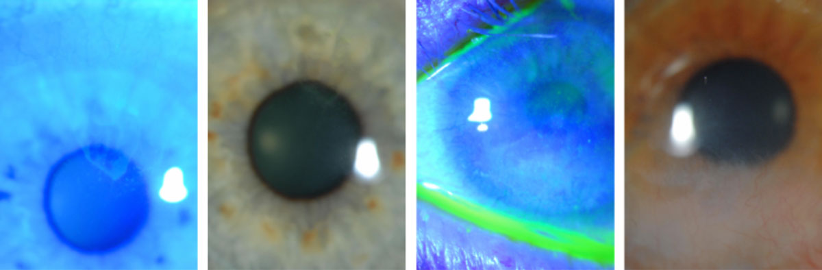 "LSCD in two different contact lens wearers shows a typical dull haze/irregular reflex with a ""whorl,"" conjunctivalized cornea (white light) and a late, stippled fluorescein effect (cobalt filter)."