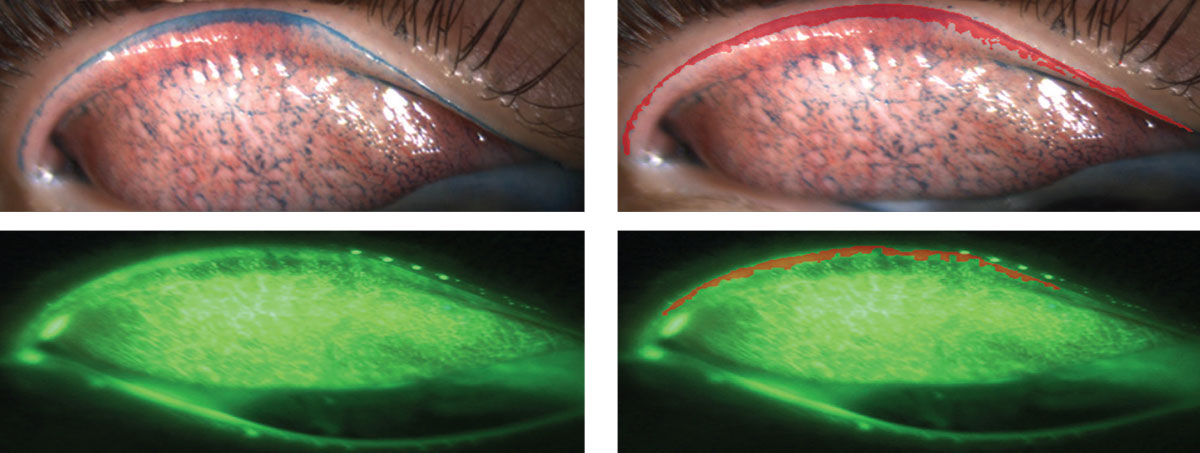 Fig. 1. All images are of everted upper lids. Images on the left use lissamine green and sodium fluorescein, respectively. See the areas colored in red on the right that outline what is considered to be lid wiper epitheliopathy.