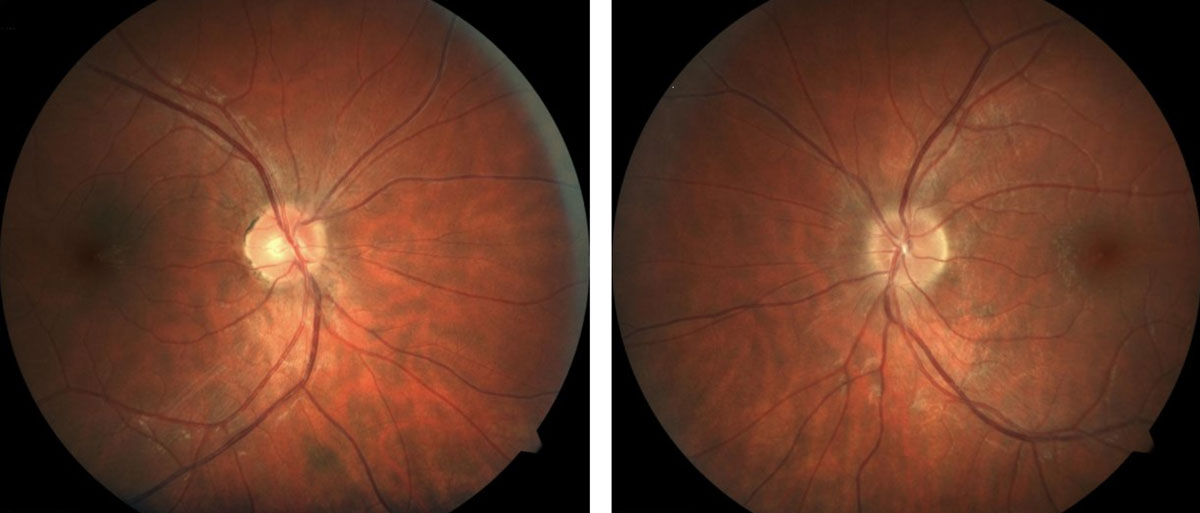 Patients with MS may present with retinal findings such as irregular or indistinct optic nerve margins.