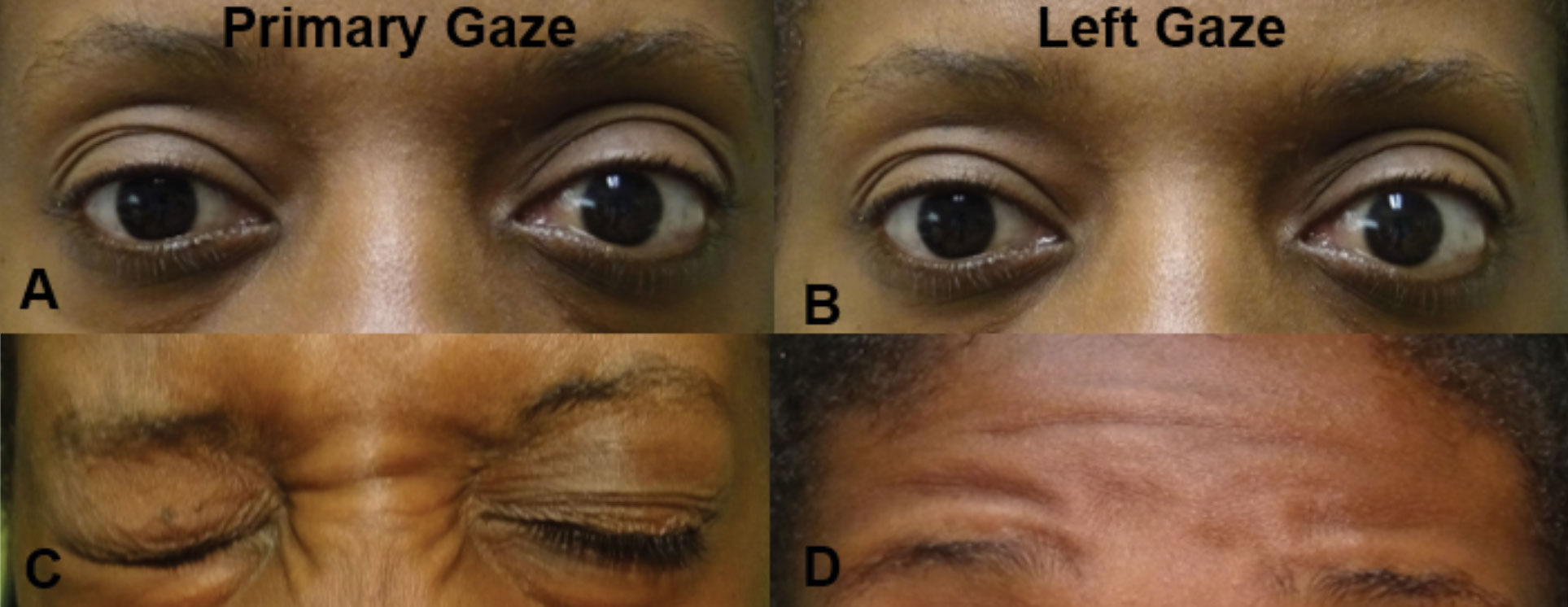 In primary gaze (A), there is a noted difference in palpebral apertures due to the left lower lid lagophthalmos. In left gaze (B), there is no movement of either eye consistent with a left gaze palsy (likely at the left CN VI nucleus). There was associated left orbicularis oculi weakness (C) and left frontalis weakness (D), both consistent with a partial left CN VII lesion. The combination of these findings localizes the lesion to the left pons involving both the CN VI nucleus and CN VII fasiculus.