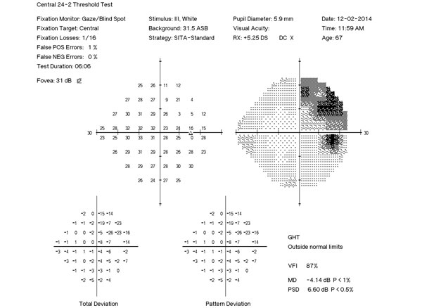 Automated Perimetry: Visual Field Deficits in Glaucoma and Beyond