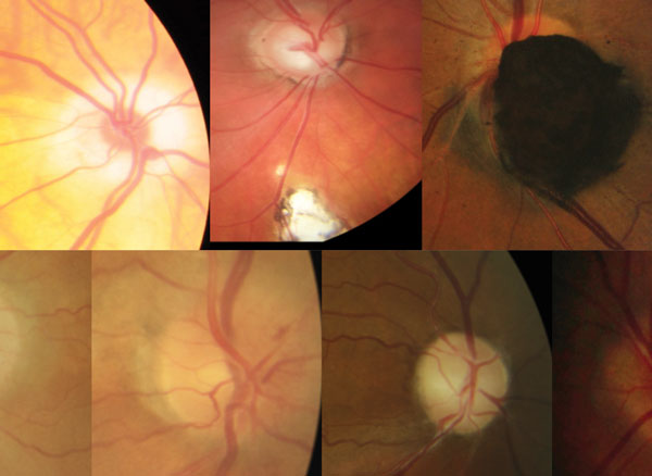 Are You Missing These Optic Nerve Disorders? - by Justin Cole and Jarett Mazzarella