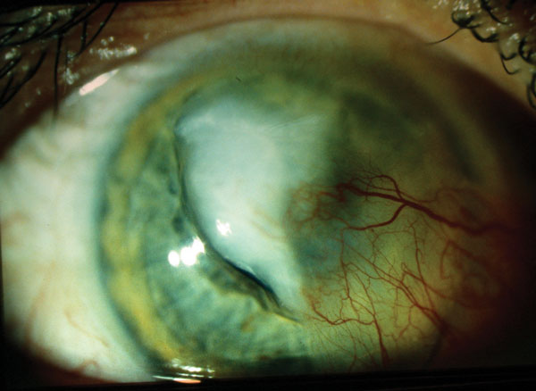 Infiltrative Keratitis: Fight the Battle for Corneal Clarity