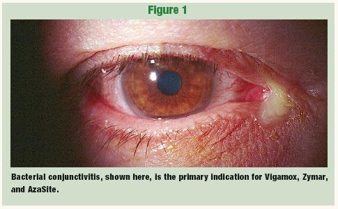 Azithromycin Eye Ointment Creativmakeup Co