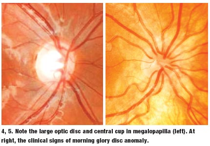lesson the differential diagnosis of an optic nerve disorder