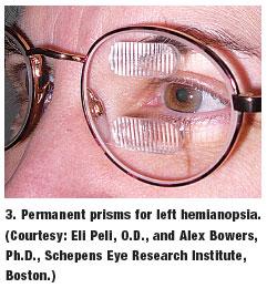 Cortical Visual Impairment CVI amp Cerebral Palsy