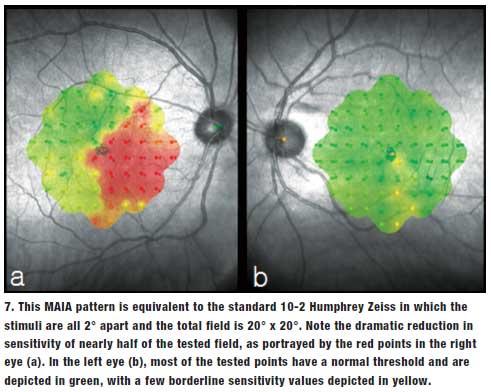 Lesson: Unlocking Leber's Hereditary Optic Neuropathy
