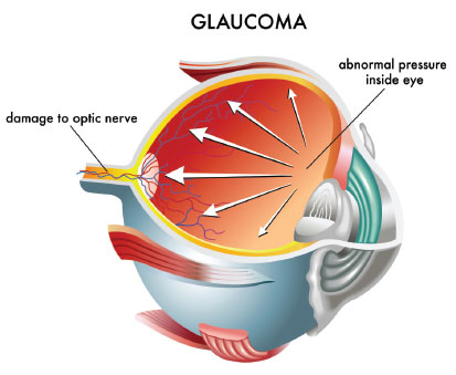 Neuroprotection for treatment of glaucoma in adults