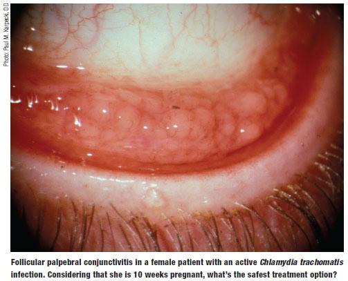 Chlamydial conjunctivitis treatment azithromycin tablets