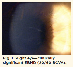 Fig. 1. Right eye—clinically