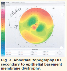 Fig. 3. Abnormal topography OD