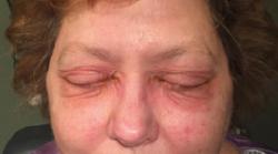 Medrol Pack For Allergies